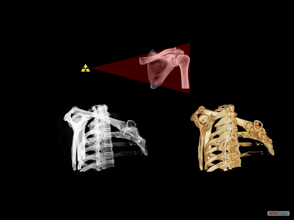 Y-Scapula Projection - Positioning, Anatomy and Correction